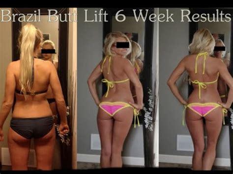 cellulite exercises picture 5