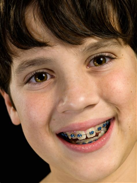 childrens braces for teeth picture 11