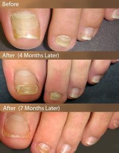 listerine therapy for toenail fungus picture 9