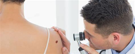 dr khurram dermatologist scar removal picture 5