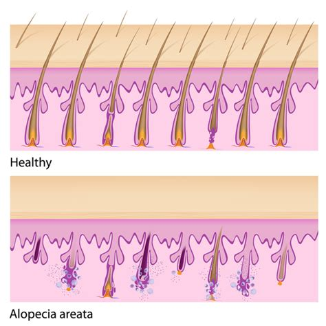 hyperparathyroidism and hair loss picture 11