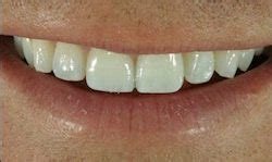 columbia teeth whitening picture 10