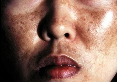 melanosis of the skin picture 5