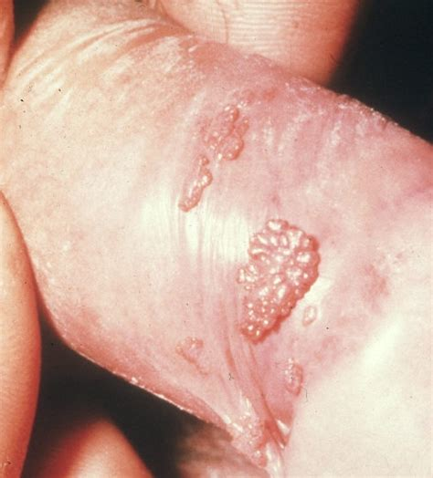 warts on vagina picture 13