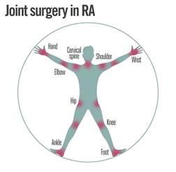 gamot sa rheumatoid arthritis treatment picture 2