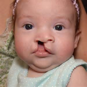 cleft lip palate picture 7