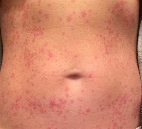 body rash hives back stomach arms picture 2