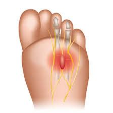 pain relief for arthritis picture 7