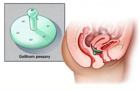 bladder removal picture 1