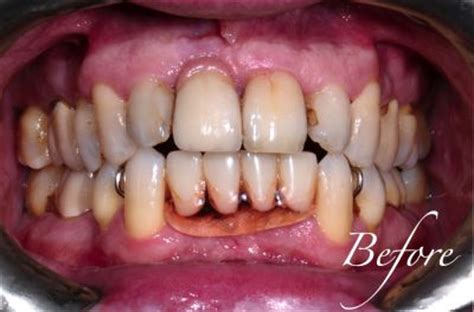 a picture of full set off teeth picture 13