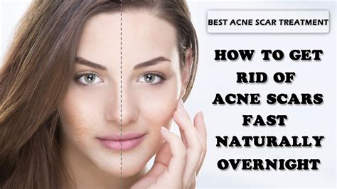 naturally dissolve sistic acne picture 3
