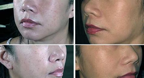aspirin helps acne picture 6