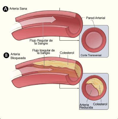 calcium build up on penis picture 5