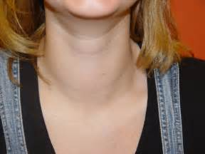 enlarged thyroid no nodules picture 1