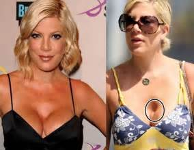breast enhancement disasters picture 13