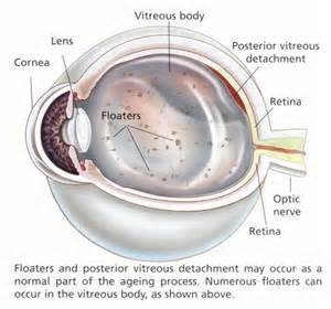 floater in eye look like smoke against the picture 6