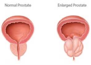 Does enlarged prostate cause erectile problems picture 13