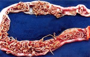 Intestinal parasite images picture 11
