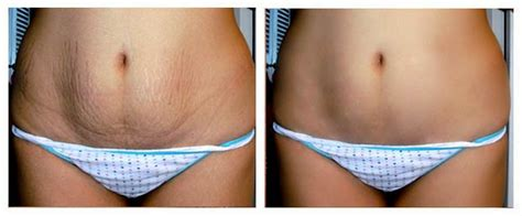 chemical ling does not remove stretch marks picture 2