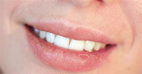 disease that cause the lip to turn pink picture 6