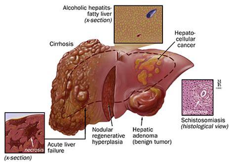 advanced portal cirrhosis liver picture 3