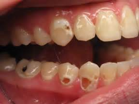 ruin teeth picture 6