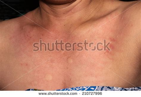 skin rash with swelling picture 11