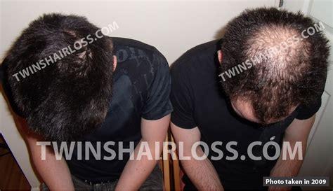 avodart is much hair picture 7