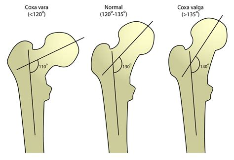 coxa vulga of hip joint picture 2