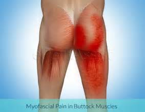 severe pain in left gluteus maximus torn tear picture 9