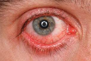 pink eye or bacterial conjunctivitis picture 3