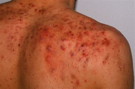 itchy cystic acne what does this mean picture 5