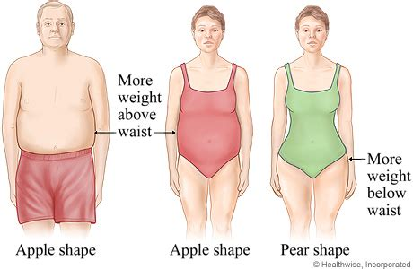 weight loss and surgery picture 3