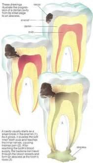 cavaties teeth picture 5