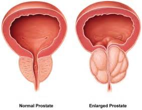 icd 9 code for prostate enlargement picture 18
