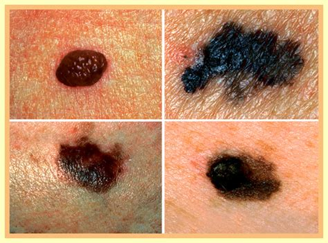 advanced squamous cell skin cancer picture 14