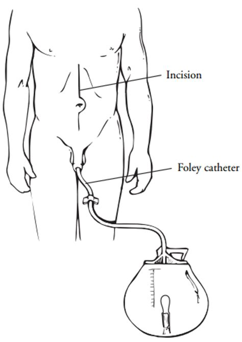 wives that urinary catheter there husbands picture 3