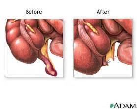 digestion appendix picture 2