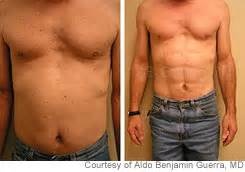 which type of lipo 6 can make muscles picture 15