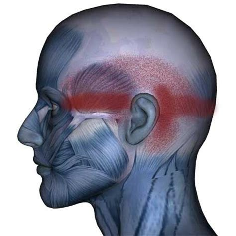 Eye muscle pain picture 1