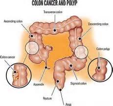 location of colon picture 3