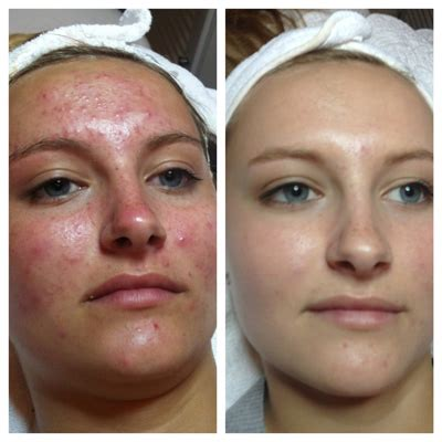 birth control and skin picture 2