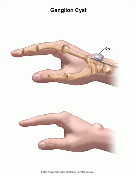 white or red thyme for ganglion cyst picture 10