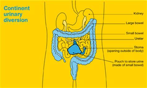 neobladder continent urinary diversion urine bladder drink picture 1