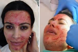 laser for skin treatment picture 10
