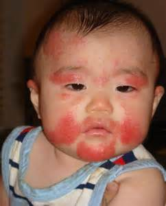 baby skin & face rash picture 17
