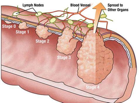 co je tumor colon picture 10