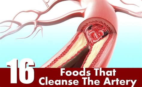 artery cleansing herbs picture 7