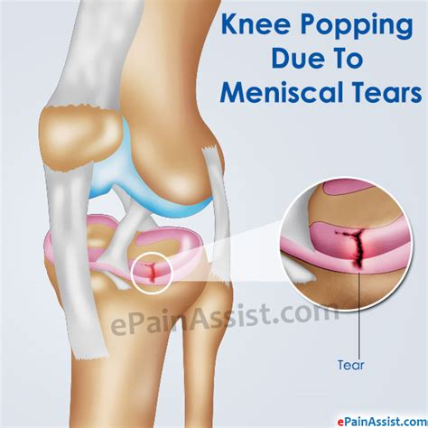 knee pain causes picture 1