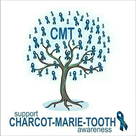 charcot marie tooth picture 13